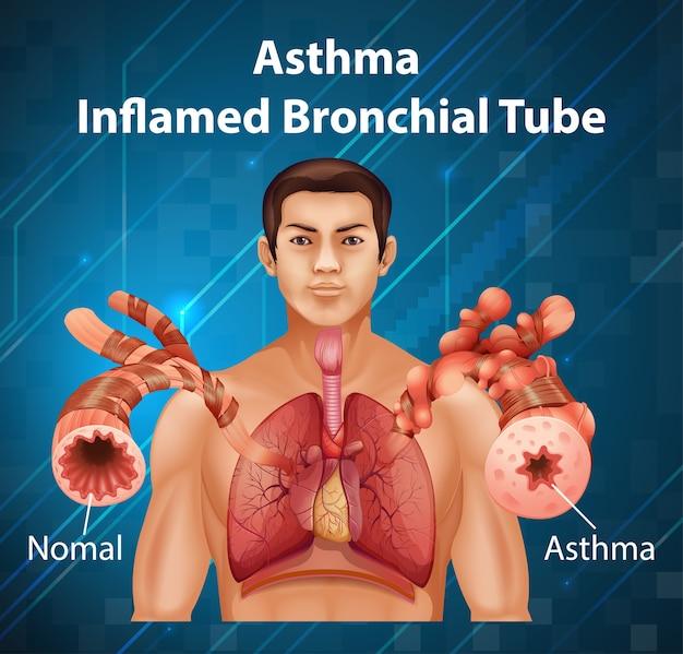 Anatomia Człowieka Astma Schemat Zapalenia Oskrzeli Darmowych Wektorów