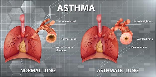 Anatomia Człowieka Schemat Astmy Darmowych Wektorów