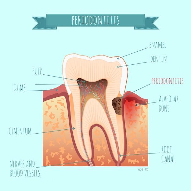 Anatomia Zęba. Zapalenie Ozębnej Premium Wektorów