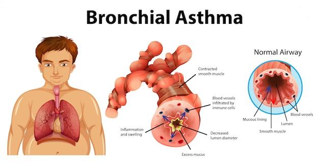 Astma Zapalenie Oskrzeli Darmowych Wektorów