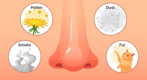 Choroba Alergiczna Czerwony Nos, Objawy Chorób Alergicznych I Alergeny. Ilustracja Kreskówka Alergie Na Dym, Pyłki I Kurz Premium Wektorów