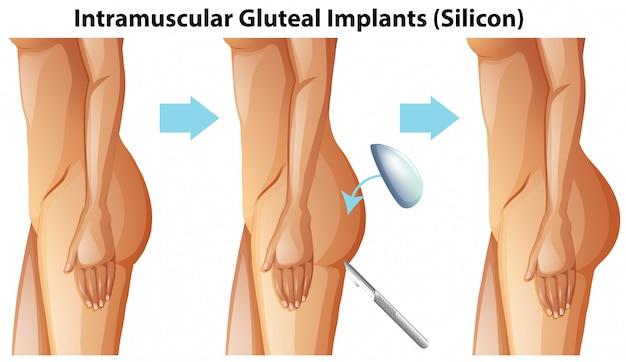 Domięśniowe Implanty Pośladkowe Na Białym Tle Premium Wektorów