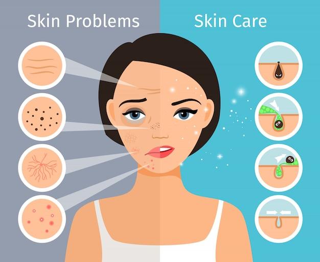 Domowa skóra twarzy czysta i tłusta, pielęgnacja i kosmetologia. kobiece głowy z piękną skórę problemów rozwiązanie ilustracji wektorowych Premium Wektorów