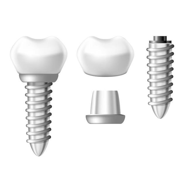 Elementy Implantów Dentystycznych - Elementy Protezy Zębowej Premium Wektorów