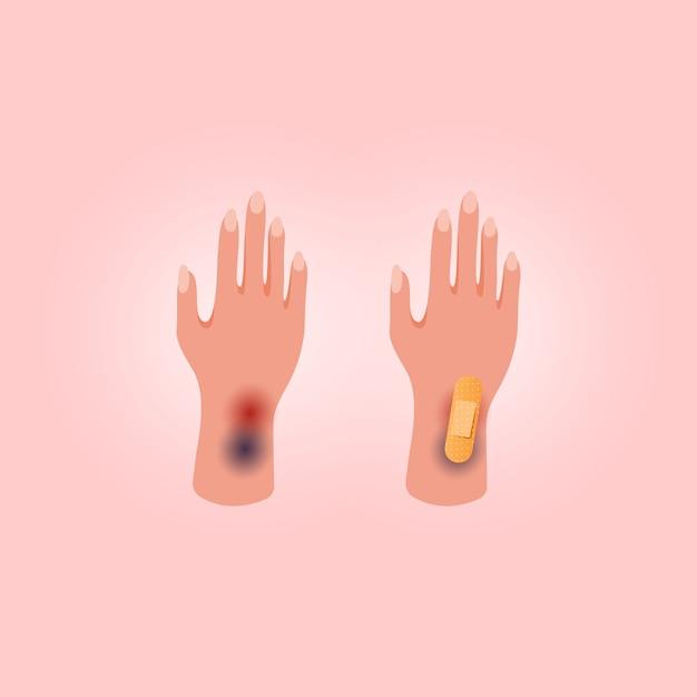 Fizyczne Obrażenia Ludzkiej Dłoni Z Otwartym Cięciem. Medyczny Plaster Na Różowym Tle. Płaski Styl świecki. Premium Wektorów