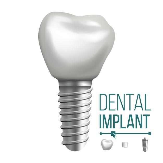 Ilustracja Implantu Dentystycznego Premium Wektorów