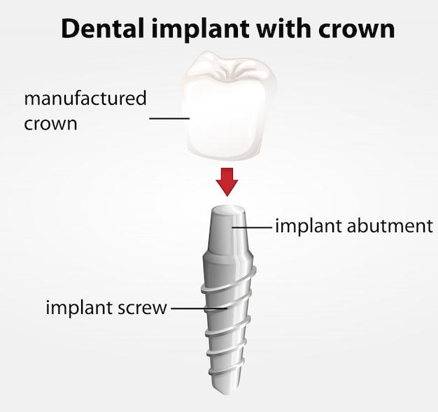 Implant Dentystyczny Z Koroną Premium Wektorów