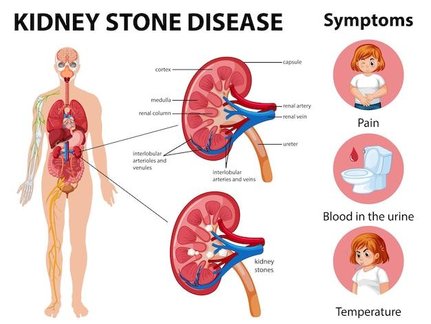 Infografika Choroby I Objawów Kamieni Nerkowych Darmowych Wektorów