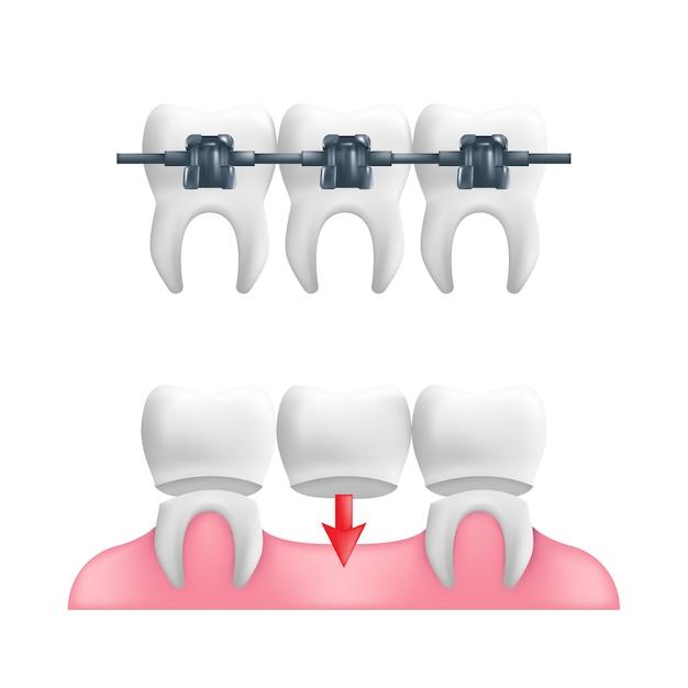 Koncepcja Protezy - Zdrowe Zęby Ze Stałym Mostem Zębowym I Aparatem Ortodontycznym Na Wierzchu. Premium Wektorów