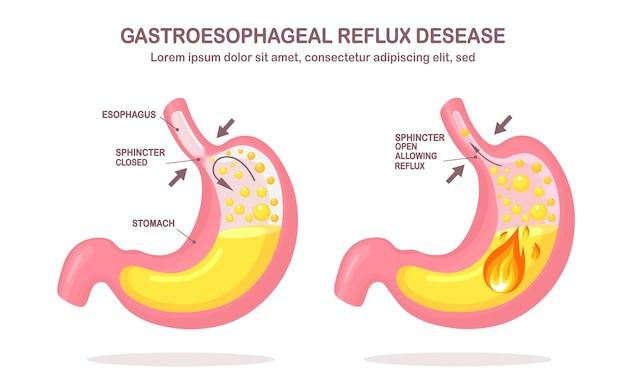 Ludzki żołądek. Choroba Refluksowa Przełyku. Gerd, Zgaga, Infografika żołądka. Kwas Przedostaje Się Do Przełyku. Premium Wektorów