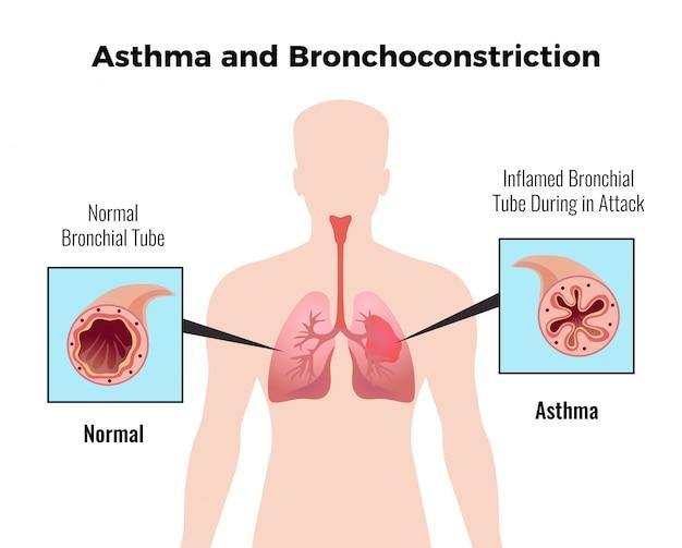 Medyczna Tabela Edukacyjna Dotycząca Ataku Astmy Z Przedstawieniem Płaskiej Prawidłowej I Zapalnej Oskrzeli Darmowych Wektorów