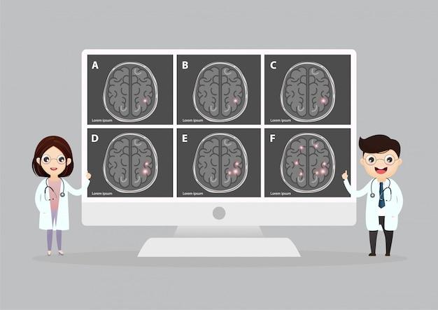 Naukowa Medyczna Ilustracja Ludzkiego Mózg Uderzenia Ilustracja Premium Wektorów