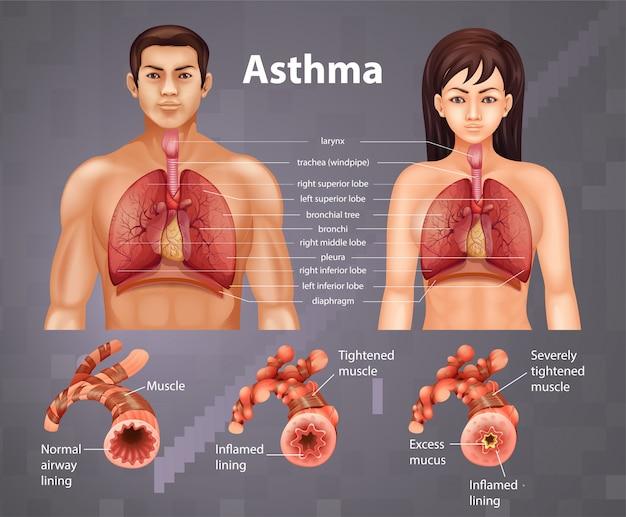 Porównanie Zdrowego Płuca I Płuc Z Astmą Darmowych Wektorów