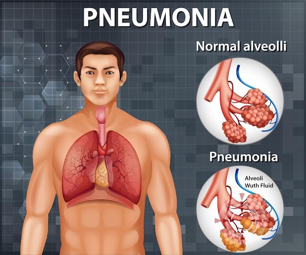 Porównanie Zdrowych Pęcherzyków Płucnych I Zapalenia Płuc Darmowych Wektorów