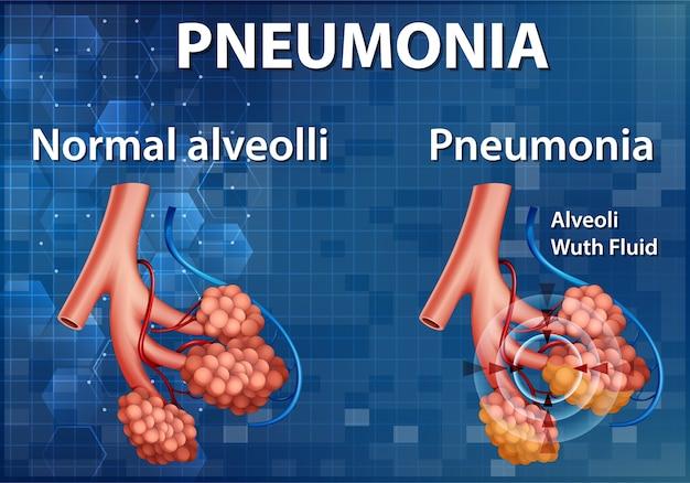 Pouczająca Ilustracja Porównania Zdrowych Pęcherzyków Płucnych I Zapalenia Płuc Darmowych Wektorów