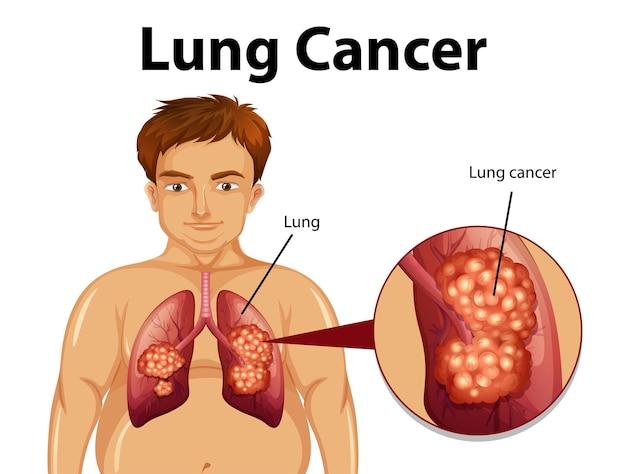 Pouczająca Ilustracja Raka Płuc Darmowych Wektorów