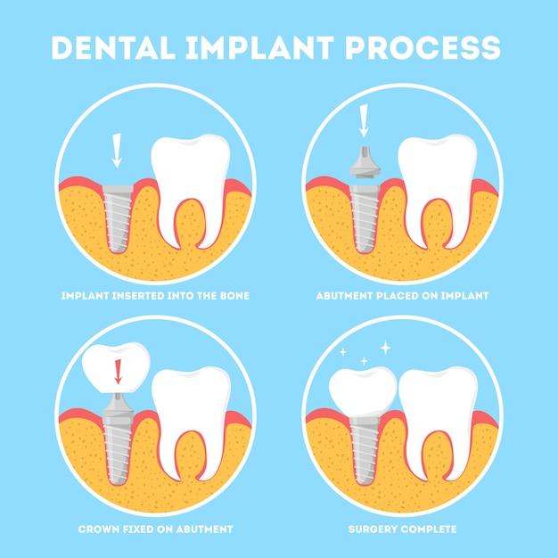 Proces Implantacji Zębów. Leczenie I Stomatologia. Premium Wektorów