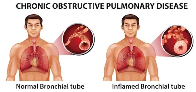 Przewlekła Obturacyjna Choroba Płuc Premium Wektorów