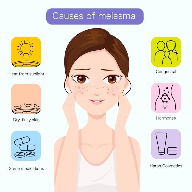 Przyczyny melasma na twarzy Premium Wektorów
