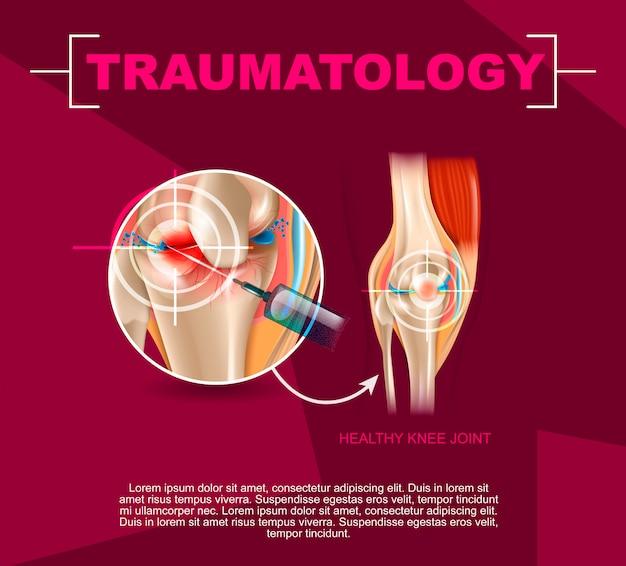 Realistyczna ilustracja traumatologia medycyna w 3d Premium Wektorów