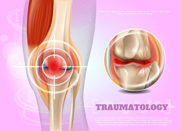 Realistyczna Ilustracyjna Traumatologiczna Medycyna W 3d Premium Wektorów