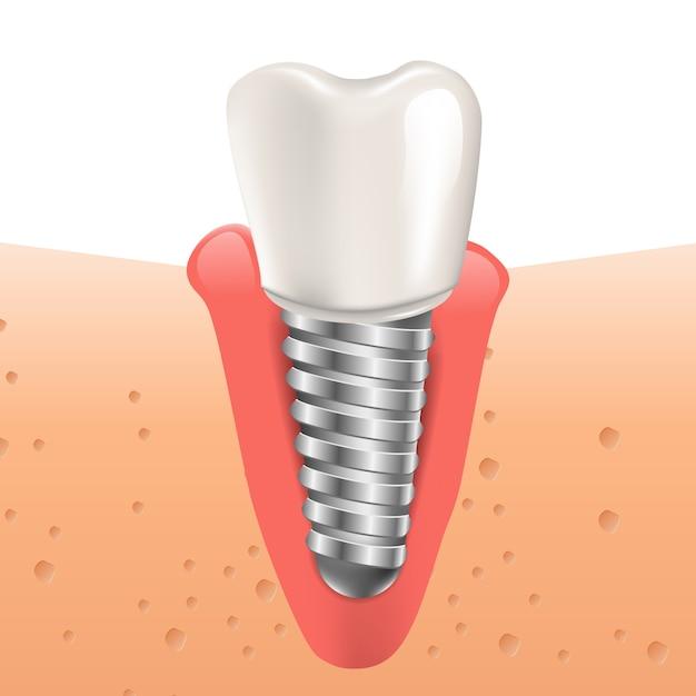 Realistyczne Ilustracja Implant Zęba W Grafice 3d Premium Wektorów