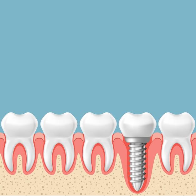 Rząd Zębów Z Implantem - Schemat Protetyki Zębów, Nacięcie Dziąseł Premium Wektorów