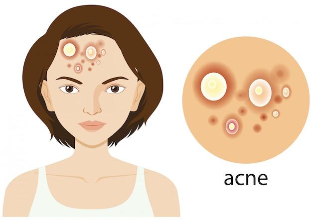 Schemat przedstawiający kobietę z problemem trądziku Darmowych Wektorów