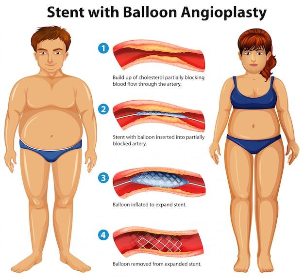 Stent Z Angioplastyką Balonową Premium Wektorów