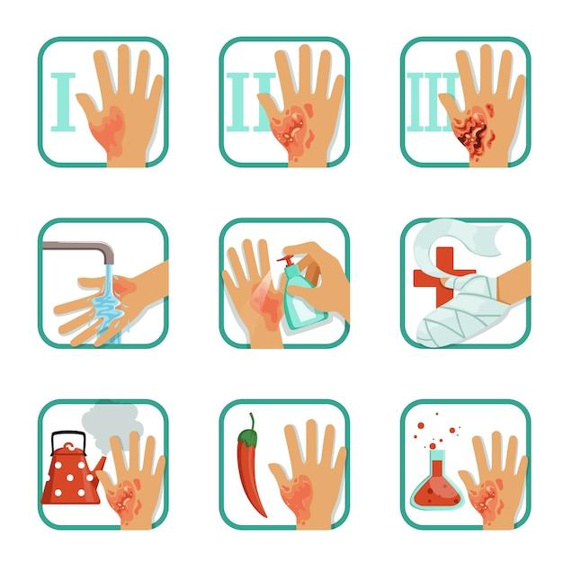 Stopień Oparzenia Zestaw, Leczenie Oparzeń I Klasyfikacja Ilustracje Na Białym Tle Premium Wektorów