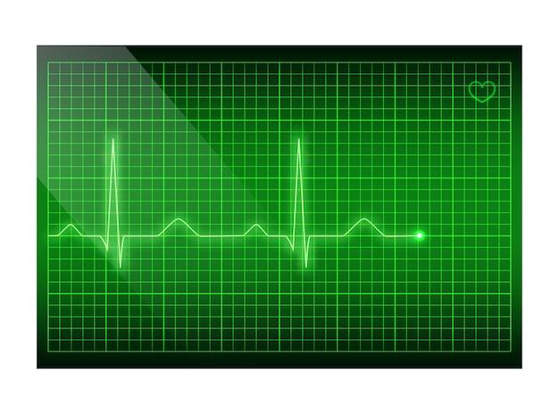 Tętno Zielona Linia Na Ekranie, Tło Elektrokardiogramu. Premium Wektorów