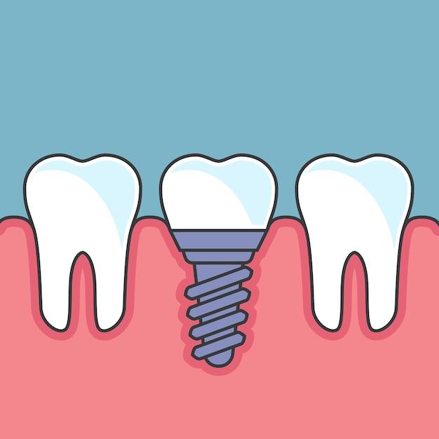 Wiercenie Zębów Z Implantem - Protetyka Stomatologiczna Premium Wektorów