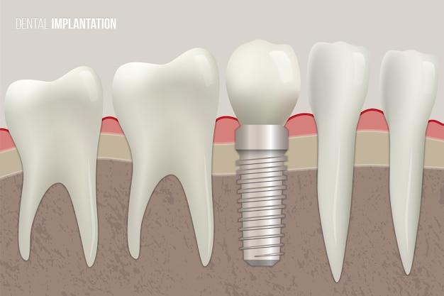 Zdrowe Zęby I Implant Dentystyczny Na Ilustracji Medycznych. Premium Wektorów