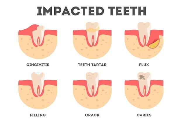 Zestaw Różnych Oddziaływań Na Zęby Ludzkie. Choroby Zębów I Jamy Ustnej. Idea Zdrowia I Leczenia. Ilustracja Premium Wektorów