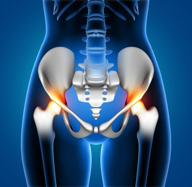 3d żeńska medyczna postać z kręgosłupem podkreślającym z bólem Darmowe Zdjęcia