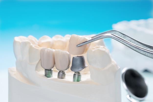 Bliska Implan Model Wsparcia Zębów Napraw Implant Mostu I Koronę. Premium Zdjęcia
