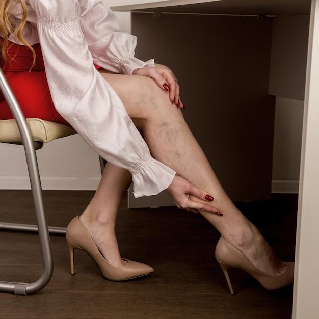 Bolesne żylaki I Pajączki Na Nogach Kobiet. Kobieta Masuje Zmęczoną Nogę W Biurze Premium Zdjęcia