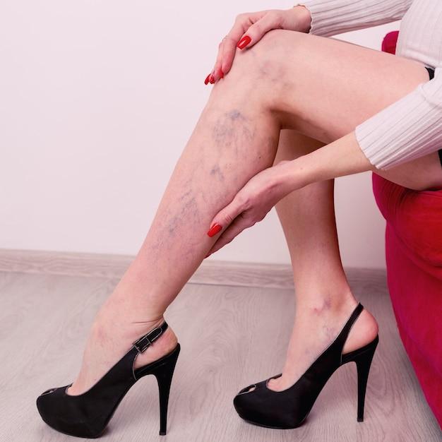 Bolesne żylaki I Pajączki Na Nogach Kobiet. Kobieta Masuje Zmęczoną Nogę W Biurze. Premium Zdjęcia