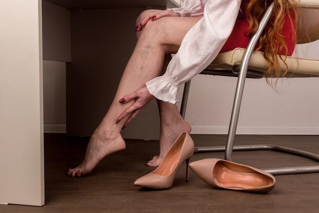 Bolesne żylaki I Pajączki Na Nogach Kobiet Premium Zdjęcia