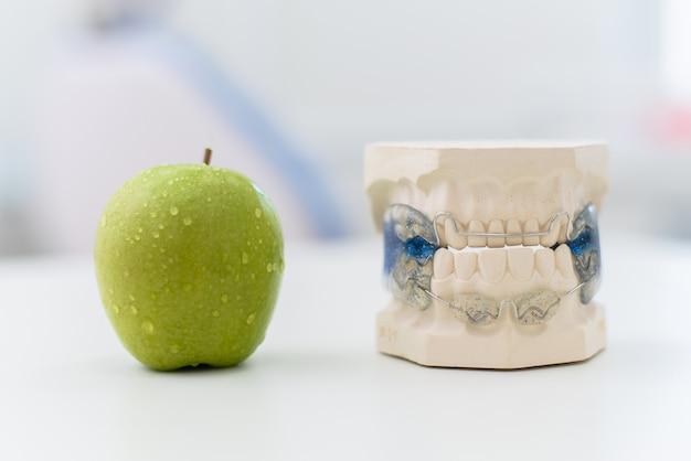 Ceramiczne szczęki z zapięciem leżą na stole z jabłkiem Premium Zdjęcia