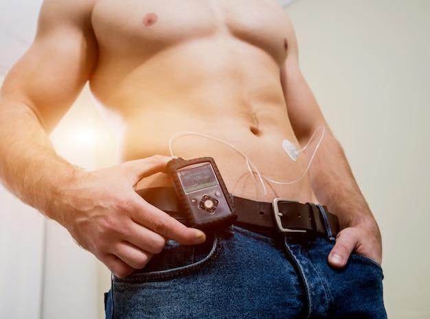 Cukrzyca Z Pompą Insulinową Podłączoną Do Brzucha I Utrzymującą Pompę Insulinową Premium Zdjęcia
