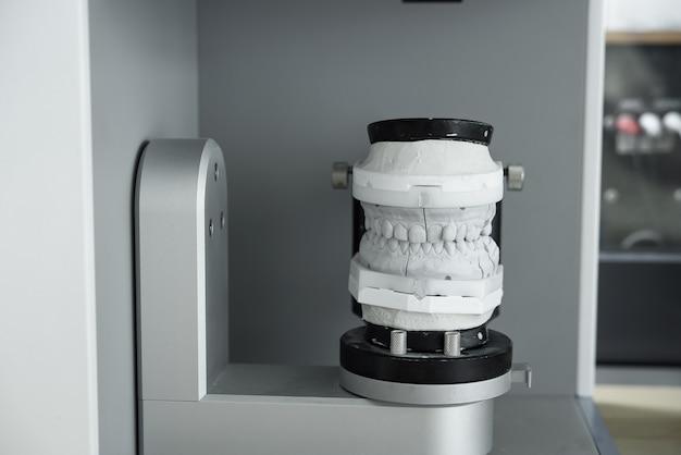 Cyfrowy Skan Modelu Zębów Gipsowych W Nowoczesnym Skanerze 3d. Inteligentne Doskonałe Technologie We Współczesnej Stomatologii. Premium Zdjęcia