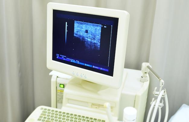 Diagnoza żylaków, Wynik Badania Usg żył Pacjenta Na Ekranie Monitora. Premium Zdjęcia