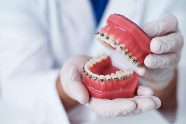Doktor ortodonta pokazuje, jak układa się system aparatów ortodontycznych na zębach Premium Zdjęcia