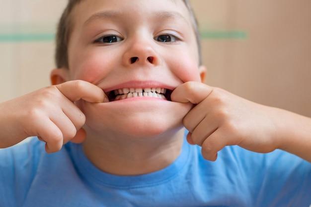 Dziecko rozciąga usta i pokazuje jej zęby Premium Zdjęcia