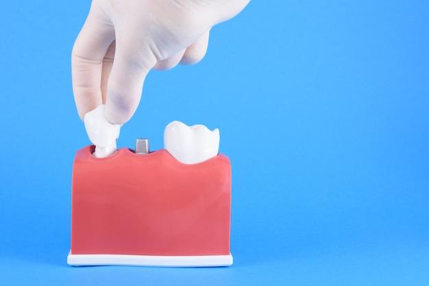 Fałszywy dentysta na niebiesko Premium Zdjęcia