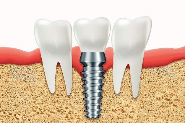 Implant Dentystyczny, Nierdzewny Słupek Gumowy Premium Zdjęcia