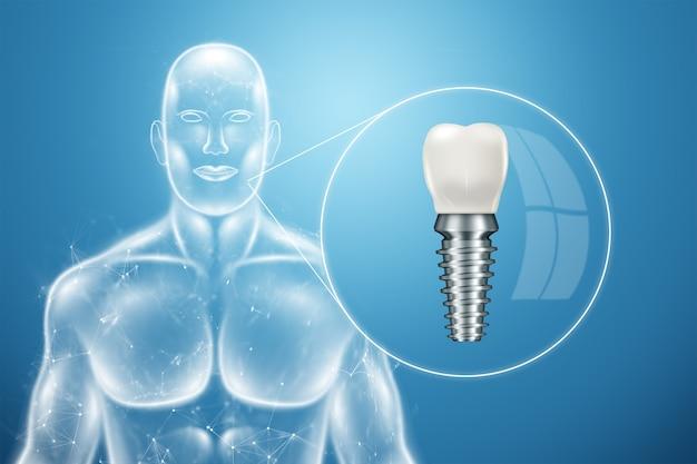 Implant Dentystyczny, Plakat Informacyjny Premium Zdjęcia