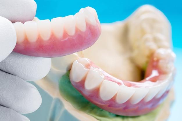 Implant Dentystyczny Zakończony I Gotowy Do Użycia / łącznik Tymczasowy Na Implancie Dentystycznym Premium Zdjęcia