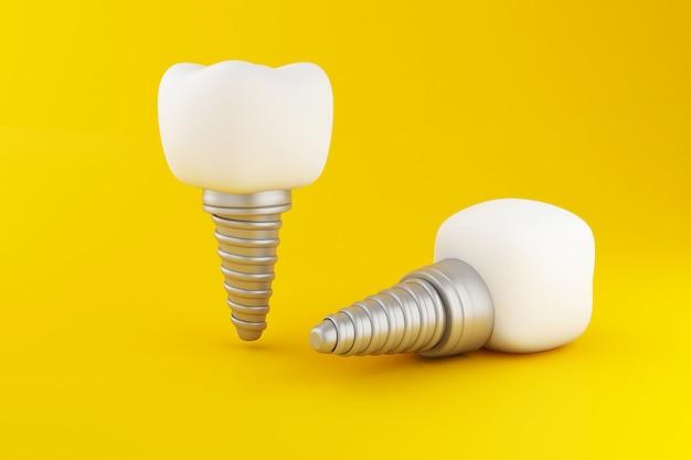 Implant zęba 3d. Premium Zdjęcia
